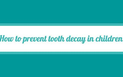 Quick Guide on How to Prevent Tooth Decay in Children